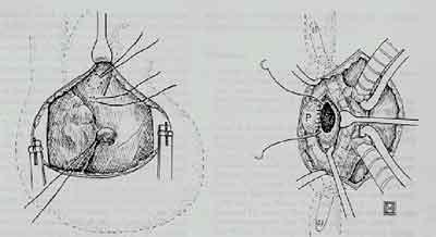 chirurgische-asd