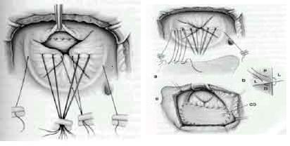 avsd-chirurgie